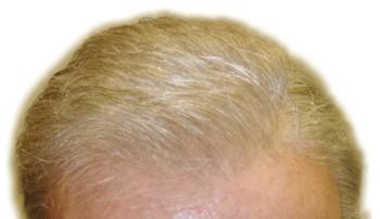 http://qukxd.xqteh.servertrust.com/v/vspfiles/images/hairline3.jpg